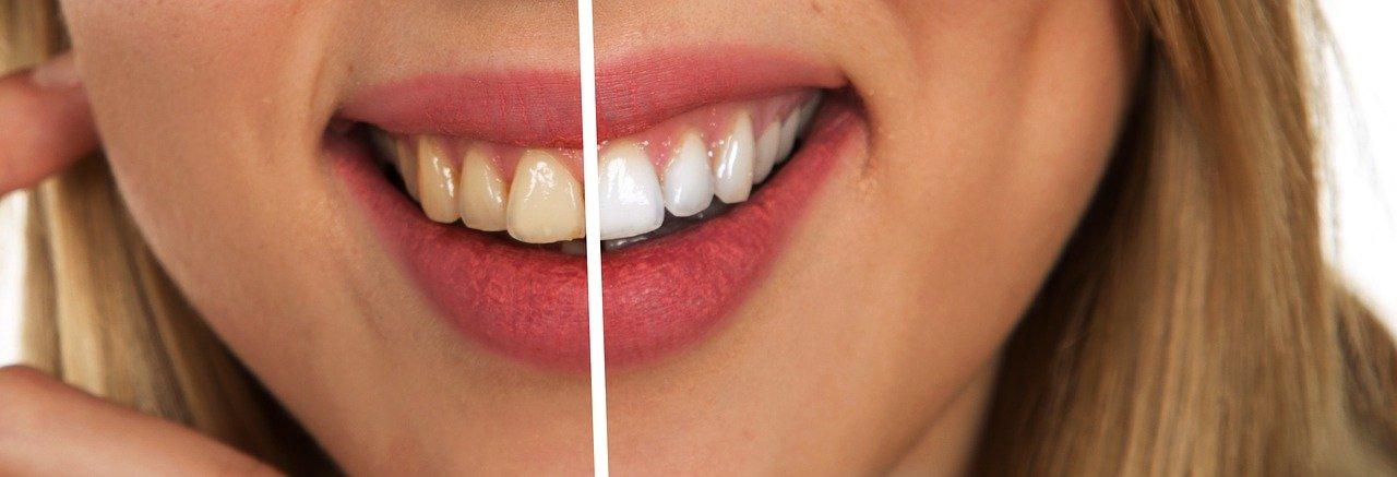 Avoir des dents blanches, avec des produits naturels