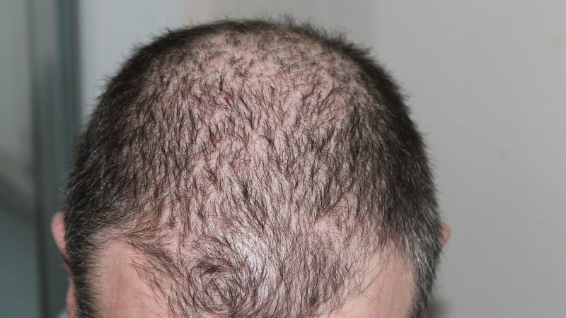 calvitie perte cheveux
