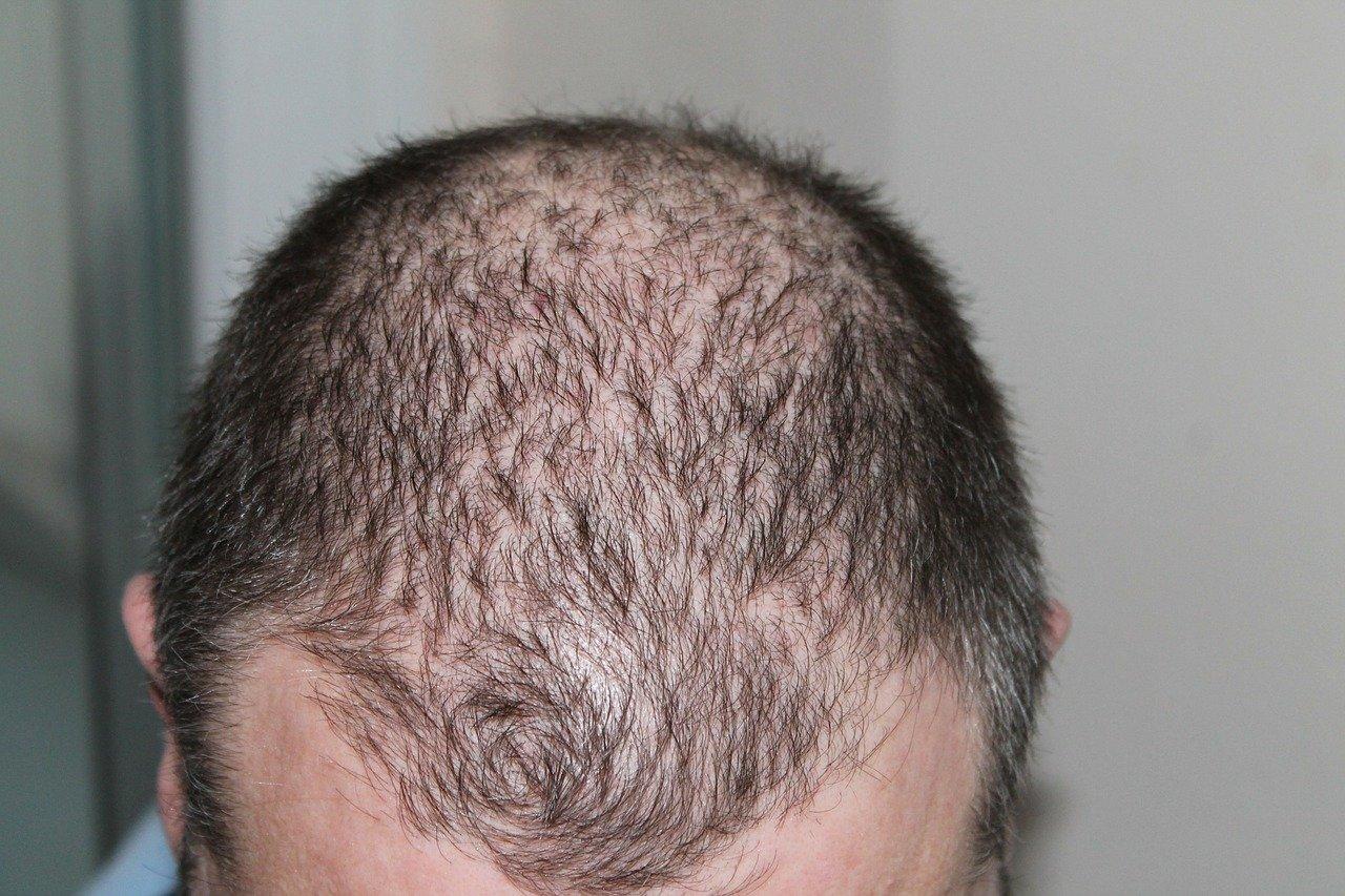 Prendre des vitamines pour lutter contre la chute de cheveux ?