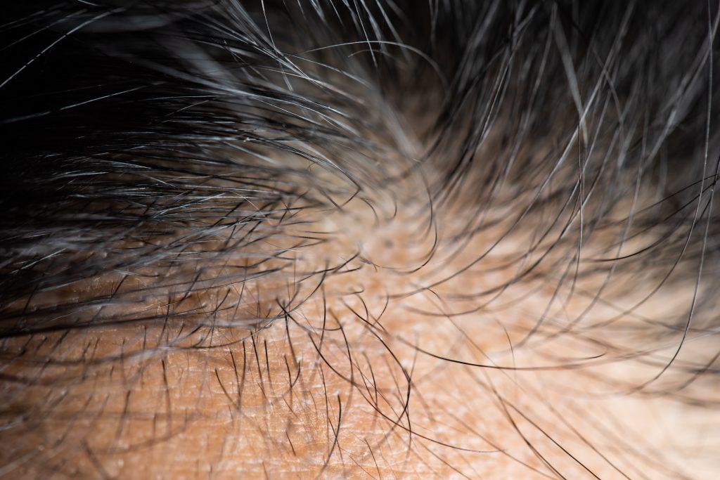 problème de cheveux